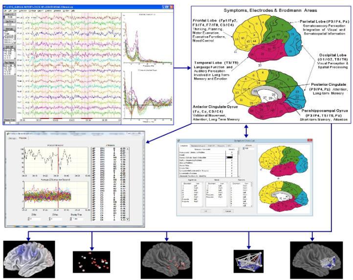 دانلود نرم افزار نوروگاید NeuroGuide به همراه کرک